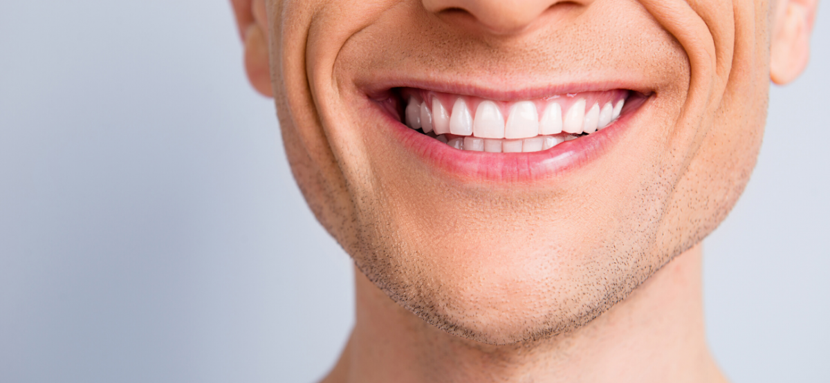 קאבר לעמוד ציפוי שיניים
