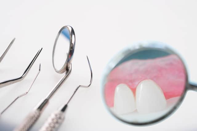 שתשלים לשיניים בחולון