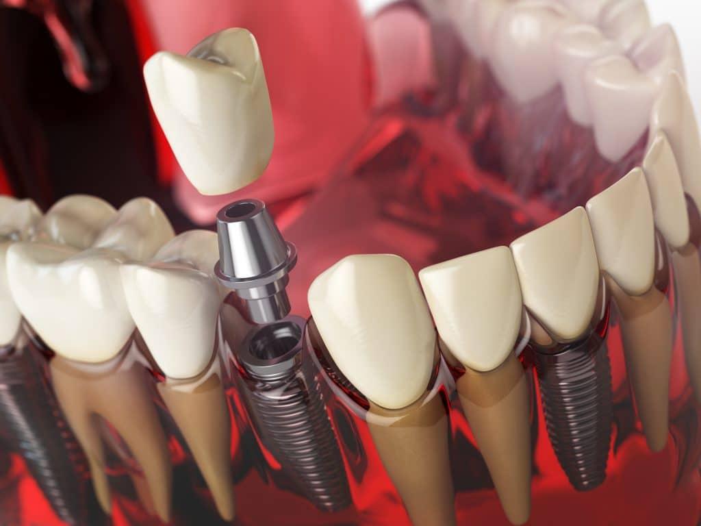 השתלת שיניים אילוסטרציה