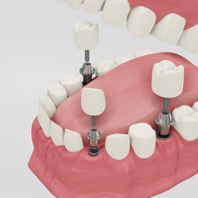 הדמיה להשתלת שיניים